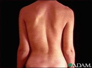 scoliosis-1